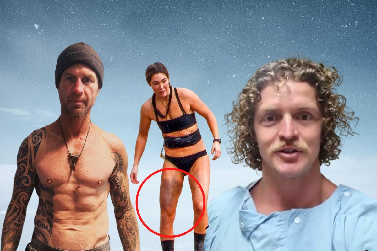 Surgery, injuries and trauma: The enormous toll SAS Australia took on its contestants.